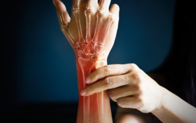 Myofascial Pain Syndrome: Causes, Symptoms, and Treatments