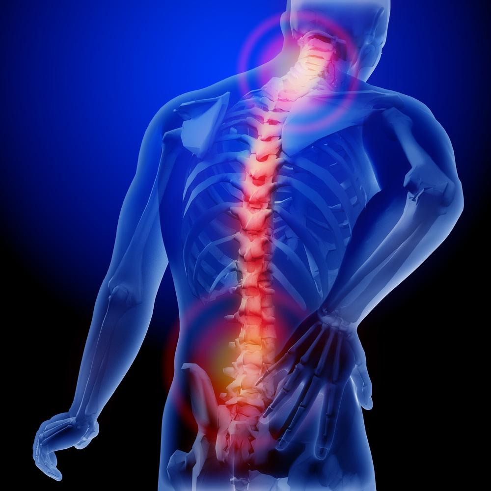 neurological pain syndrome