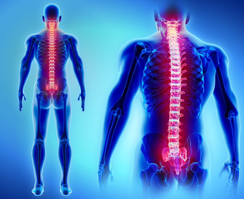 what-is-dorsal-root-ganglion-stimulation