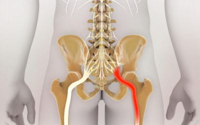 Sciatica Pain: Causes and Treatment