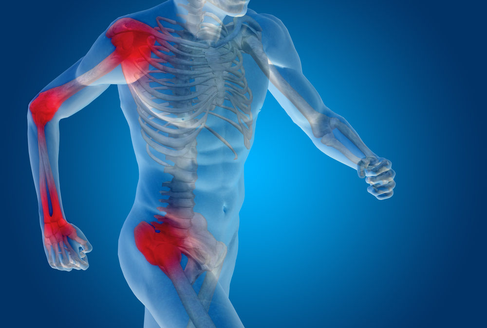 Interventional Pain Procedures to Reduce Joint Inflammation