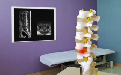 4 Things to Stop Doing if You Have Spinal Stenosis