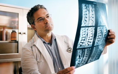 Spinal Fusion and Why You Might Need It